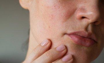 DW: Κλιματική αλλαγή και καρκίνος του δέρματος